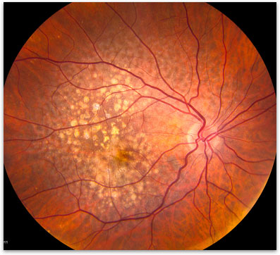 Age Related Macular Degeneration Retina Vitreous Surgeons Of Cny